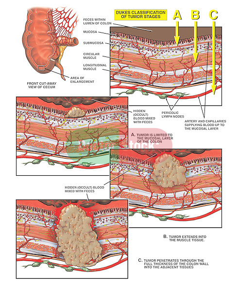 This multi-image medical exhibit shows the development and progression of an invasive cancerous tumor of the cecum of the large bowel. .Specifically shown are the following: 1. Normal cecum and layers of the bowel as describe in the Duke's tumor classification, 2. Progressive cut-sections through the bowel wall illustrating the tumor's growth from the mucosa, to the submucosa and finally through to the muscular and outer layers of the colon.