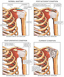 Shoulder Joint Adhesive Capsulitis (Frozen Shoulder). This custom medical exhibit shows multiple images of the left anterior shoulder bones and soft tissues revealing a progression of conditions following a Traumatic Injury to the Shoulder. Images include: 1. Normal pre-accident condition, 2. Condition with bone spurs, bursitis and rotator cuff tear, 3. Condition after surgery following resection and repair, and 4. Final condition with chronic pain scarring and adhesive capsulitis.