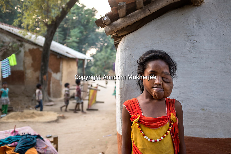 Anami Oraon, 16, of Dungridih village has a huge tumour on the left side of her face. It has disfigured her and robbed her of vision in the left eye. She still attends school 2km away in Bango village. Her brother Sodharam, 14, also has swellings on the left calf and back.