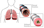 Asthma Attack. The medical exhibit compares the anatomical differences in a normal bronchus and an inflamed bronchus, as seen in asthma or acute bronchitis  A figure with a respiratory system helps to orient the viewer.