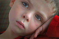 Sick boy with hazel eyes stares after medicine for a skin rash and fever makes him groggy and irritated.