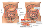 This custom medical exhibit compares normal colon anatomy with multiple progressive colon conditions as discovered through colonoscopy. Pathologies include diverticulosis, ulcerative colitis, and sessile polyps. A single added inset shows the ulcerative colitis invading the mucosal layers of the colon wall.