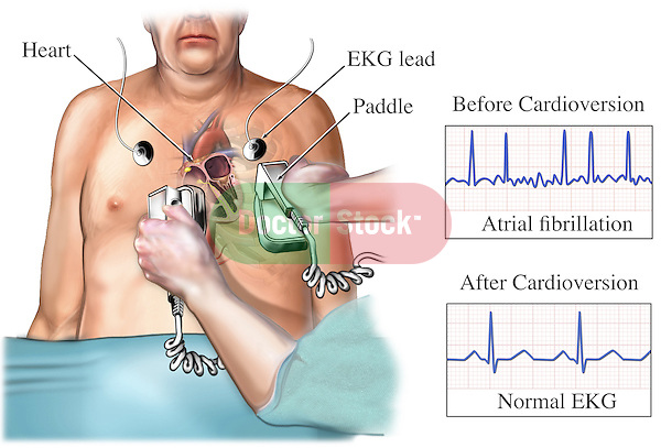 This stock medical exhibit reveals the process of eliciting an electric pulse shock (cardioversion) through the heart to revert an abnormal heartbeat into a normal sinus rhythm.
