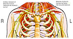 This full color stock medical exhibit illustrates the condition of thoracic outlet syndrome (TOS). The normal passage of the brachial plexus through the thoracic outlet is shown on the right side of the torso. The brachial plexus is   shown pinched between the scalene muscles on the left side resulting in thoracic outlet syndrome.