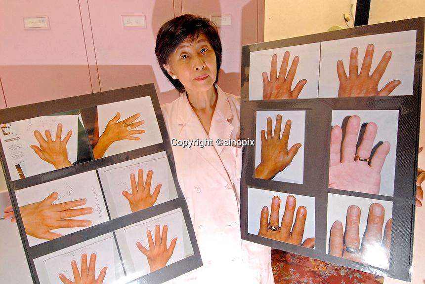 A nurse holds photos showing before and after pictures of hands and fingers operated on at the Hello Tomorrow Clinic in Tokyo, Japan. The clinic specializes in making false fingers to Japanese gangsters, known as the Yakuza, who have had to show allegiance etc by cutting their own fingers off.  The clinic has made and fitted fingers to over 3,000 gang members who need to disguise thier back-ground.<br /> 10-Oct-2006