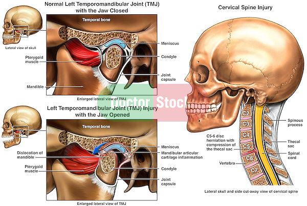 Left Temporomandibular Joint (TMJ) Injury.