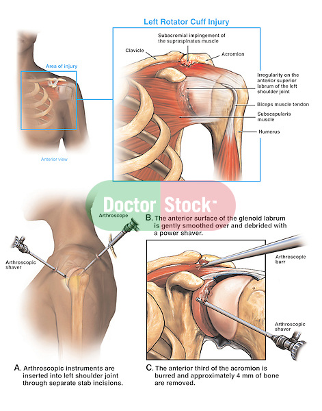 Left Shoulder Joint Injury of the Rotator Cuff Muscle Tendons with Arthroscopic Repair of the Glenoid Labrum.