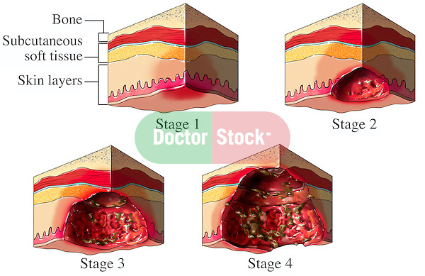 Pressure Sores (Ulcers, Bedsores). Accurately depicts the progression of a pressure sore formation from stage 1 through stage 4.