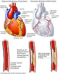 Coronary Artery Disease. This medical exhibit provides an overview of the anatomy of the heart and a focus on potential blockage sites of the coronary arteries. It also features the progression of plaque build-up in the coronary arteries.