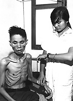 The effects of just one month spent in a Viet Cong prison camp show on 23-year-old Le Van Than, who had defected from the Communist forces and joined the Government side, was recaptured by the Viet Cong and deliberately starved.  Ca.  1966.  (USIA)<br /> EXACT DATE SHOT UNKNOWN<br /> NARA FILE #:  306-PSC-66-3211<br /> WAR & CONFLICT BOOK #:  413