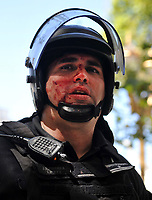 A policeman is seen with his face bleeding during severe riots  while the Congress was discussing modifications in a  retirement law.