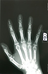 X-Ray Of Kris Timmerman's Hand Bitten By Black Bear Fixed