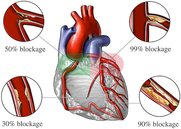 Heart - Coronary Artery Disease.