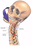 Dramatically depicts the limited articular range of motion in the rotation of the head and neck secondary to an incorrectly performed anterior spinal fusion surgery (iatrogenic injury). A fusion plate is shown from C5 to C6 with fusion bone masses in place at C5-6 and C6-7.  Above and below the fusion sites are reddened areas illustrating the additional stress to the facet joints on either side of the bony fusion mass.