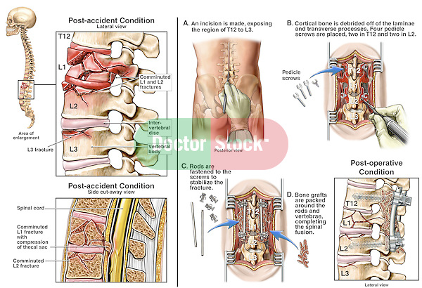 Spine Injury - L1, L2 Lumbar Vertebral Burst (Crush) Fractures with Spinal Fusion Surgery.