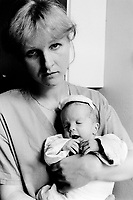 Poland. Silesia. Zabrze. Zabrze hospital. Pediatric ward. a nurse holds an hydrocephalia baby in her arms. Major polluted area due to heavy metals supended in the air. Zabrze is a small town, distant 20 km from Katowice. Hydrocephalus, also known as Water on the Brain, is a medical condition. People with hydrocephalus have an abnormal accumulation of cerebrospinal fluid (CSF) in the ventricles, or cavities, of the brain. This may cause increased intracranial pressure inside the skull and progressive enlargement of the head, convulsion, and mental disability. Hydrocephalus can also cause death.© 1991 Didier Ruef