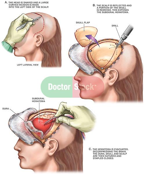 Surgical Repair of Subdural Hematoma.
