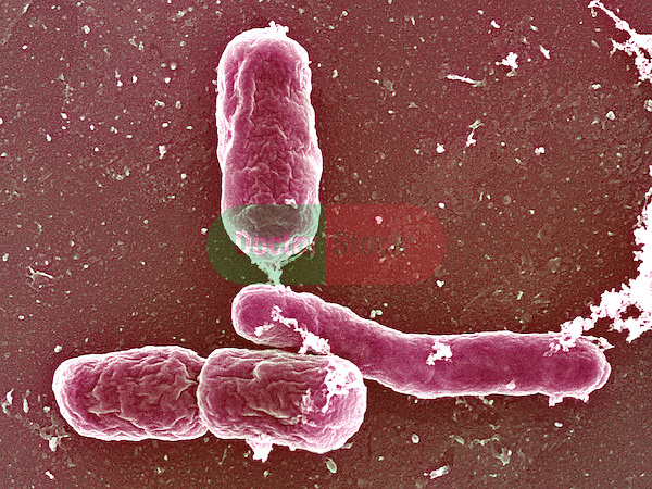 Bacteria, Salmonella heidelberg bacteria, causes salmonellosis, most commonly related to under-cooked eggs, 30,000x magnification
