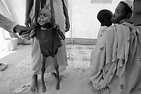 Beredjing refugee camp, Tchad, June 14, 2004.Alhadi Zacaria Abakar is 2 years old but weighs only 5,3kg and is only 72 cm tall; he suffers from very severe malnutrition. In less than 2 weeks this camp's population has swollen from 600 to 13000, an average of 1000 new arrivals show up every day...