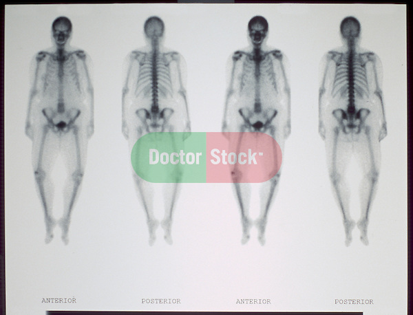 Bone scan of adult woman made at Colorado hospital