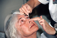 A nurse instils drops into a patients eye before surgery to remove a cataract. The drops will cause the pupil to dilate allowing the surgeon better access to the lens which lies just behind the pupil. This image may only be used to portray the subject in a positive manner..©shoutpictures.com..john@shoutpictures.com