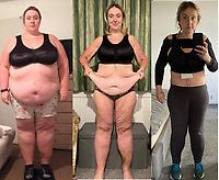 Woman lost 12 stone in weight and then raised £15,000 to have her excess skin removed.
