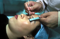A patient has her eyes marked before an operation to widen her eyes in Shenzhen, China.