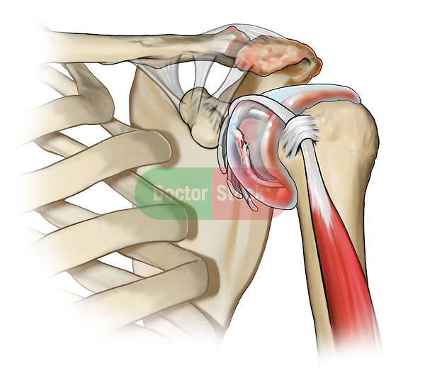 Shoulder labral tear and synovitis; this medical illustration illustrates a shoulder labral tear and synovitis in a rotator cuff repair.
