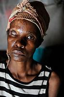 ZAMBIA, copperbelt, town Ndola, woman Anna Mulonga 47 years with HIV aids and skin infection / SAMBIA Ndola im Copperbelt, township Nkwazig, Anna Mulonga, sie ist an Aids HIV erkrankt und hatte eine Infektion, die Auge und Gesicht zerstoert haben