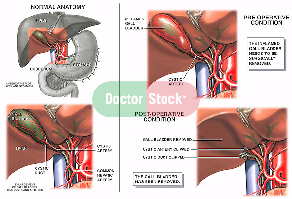 Cholecystectomy (Gallbladder Removal Surgery).