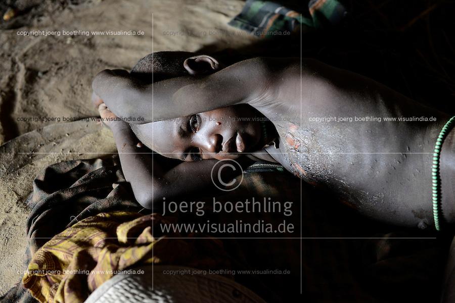 ETHIOPIA, Southern Nations, Lower Omo valley, Kangaten, village Kakuta, Nyangatom tribe, boy Lonok with several burns  / AETHIOPIEN, Omo Tal, Kangaten, Dorf Kakuta, Nyangatom Hirtenvolk, Junge mit Verbrennungen