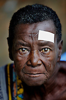 A man waits for an operation to remove a cataract. The white sticker indicates which eye is to undergo the procedure.  <br /> <br /> From his base in Mbuji Mayi Hungarian ophthalmologist Friar Richard Hardi and his team travelled deep into the Congolese rainforest, by 4x4 and canoe, to treat people in isolated communities most of whom have never seen an ophthalmologist. At a small village called Pania they established a temporary field hospital and over the next three days made hundreds of consultations. Although both conditions are preventable, many of the patients they saw had Glaucoma or River Blindness (onchocerciasis) that had permanently damaged their eyesight. However, patients with cataracts, a clouding of the eye's lens, who were suitable for treatment were booked for an operation. For two days the team carried out the ten minute procedure on one patient after another. The surgery involves making a 2.2mm incision into the remove the damaged lens that is then replaced by an artificial one. Doctor Hardi is one of the few people willing to make such a journey but is inspired to do so by his faith and, as he says: 'Here I feel that I can really make a difference in people's lives'. /Felix Features