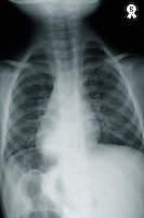 X-ray image of young boy's (12-13) torso (Licence this image exclusively with Getty: http://www.gettyimages.com/detail/84754480 )