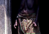 Lepreux, Senegal<br /> <br /> (date inconnue)<br /> <br /> PHOTO : Michel Faugere Publiphoto- Agence Quebec Presse