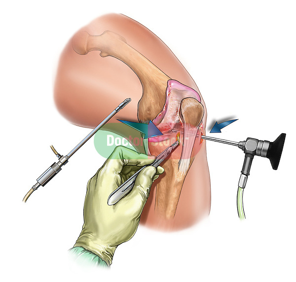 Insertion of arthroscopic intruments in knee; this medical illustration illustrates the insertion of arthroscopic intruments in knee.