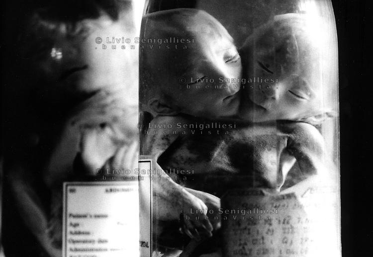Ho Chi Mihn City / Vietnam.<br /> Conseguenze della guerra in Vietnam 40 anni dopo.<br /> Tu Du Hospital, centro per l'assistenza e la cura dei bambini nati con gravi malformazioni a causa dell'agent orange.In una camera vengono conservati in flaconi di formalina i feti dei bambini nati morti a causa delle gravi malformazioni conseguenti alle mutazioni indotte dall'agent orange ingerito dai genitori durante la guerra o assunto attraverso il ciclo alimentare. Secondo i dati della Croce Rossa Vietnamita le vittime della sindrome da Agente Arancio sono 4 milioni. Decine di migliaia i bambini nati morti.<br /> Foto Livio Senigalliesi.<br /> Tu Du Hospital - Ho Chi Minh City / Vietnam.Consequenses of the war in Vietnam 40 years later.Fetus born dead or died soon after birth because of serious deformities. The fetus are preserved in formaline.<br /> A silent massacre which has been going on since the seventies and causes thousands of innocent victims every year. According to the Red Cross the victims affected by Agent Orange Syndrome are 4 milions.<br /> Photo Livio Senigalliesi