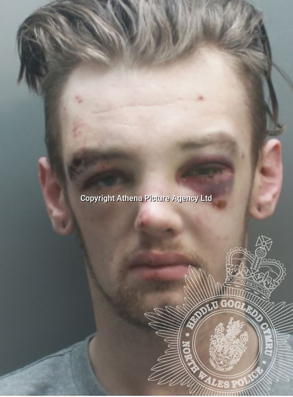 """Pictured: Keegan Doyle<br />Re: Keegan Doyle, described as a """"cowardly"""" hit-and-run getaway driver who left 10 year old Alfie Watts with a severe brain injury has been jailed by Mold Crown Court, north Wales, UK.<br />Doyle, 23, of Broughton, Flintshire, was jailed for three years and eight months after admitting causing serious injury by dangerous driving and arson.<br />Doyle struck Alfie Watts who was riding his bicycle in Saltney, near Chester, on 6 January.<br />Alfie's life was """"changed irreversibly"""" said Judge Niclas Parry.<br />Alfie suffered a fractured skull and brain injury and was rushed with a police escort to Liverpool's Alder Hey children's hospital """"fighting for his life"""".<br />Sion ap Mihangel for the prosecution said Doyle had been the getaway driver for a fleeing shoplifter.<br />Doyle """"drove like an idiot"""" at up to 60mph in a 30mph zone, the court was told."""