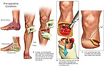 Below the Knee Amputation of the Left Foot. This full color medical exhibit starts with two lateral illustrations of the left foot depicting the extensive necrosis of the skin and the osteomyelitis (bone marrow inflammation). These images are followed by four key steps in the below the knee amputation procedure. The surgical steps presented include the sawing through of the tibia and fibula to remove the lower leg and foot and the creation of a stump.