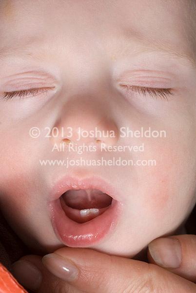Baby boy's first teeth