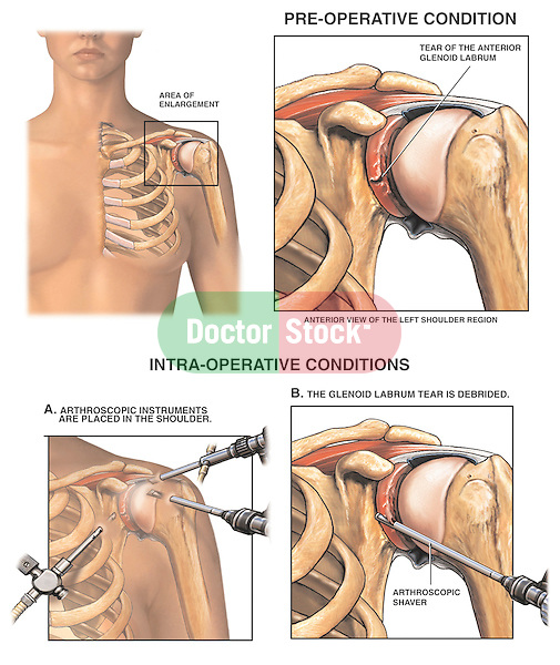 Shoulder Joint Injury - Torn Glenoid Labrum with Arthroscopic Surgery Repair.