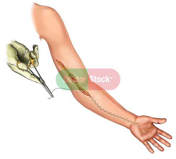 Complete skin closure after fasciotomy; depicts the closure of an extensive Fasciotomy on the forearm and upper arm