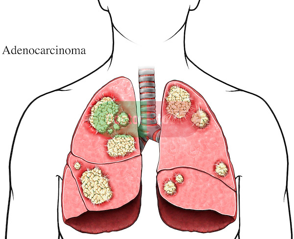This medical exhibit pictures highly developed adenocarcinoma (invasive tumors) of the lung from an anterior (front) view.