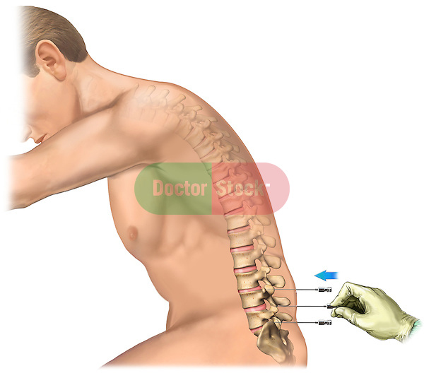 This stock medical image reveals a lateral view of male figure in flexion. A gloved surgeon's hand is seen inserting spinal needles into the low back at  L5-S1, L4-L5, and L3-L4, for use in a Discogram study.