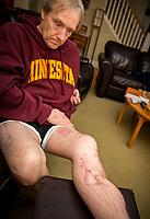 02-15-19 Bob Butwinick personal injury lawsuit minneapolis photography