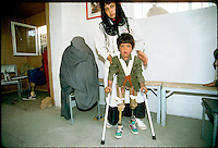 ICRC special amputee hospital in the Afghan capital Kabul taking care of the consequence of mine and UXO..This young child have lost is 2 legs collecting wood for cooking. Behind him the ICRC nurse, behind on her left his mother in a burka on the chair, and in the back room his sister how have ben amputee of here 2 legs.