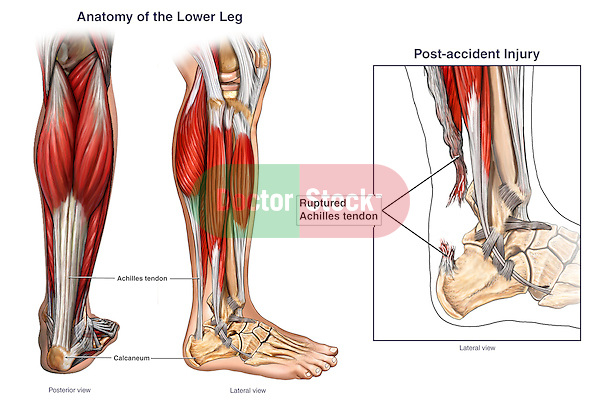 This full color medical-legal illustration displays the normal anatomy of the lower leg and the rupture of the achilles (calcaneal) tendon. Labels the calcaneus and achilles tendon, the latter of which arises from the gastrocnemius (calf) and soleus muscles. The third  picture describes the post-accident condition with the ruptured achilles tendon, from a lateral view.