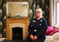 Pictured: Carolyn Churchill at her home in Nantgarw near Pontypridd, south Wales, UK. Sunday 14 August 2017<br /> Re:  Carolyn Churchill who has had complications with vaginal mesh surgery