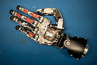 The hand of a Modular Prosthetic Limb at Johns Hopkins Applied Physics Lab in Maryland before it is put on Les Baugh. Baugh lost both his arms at the shoulder in a freak electrical accident 40 years ago. Since then, he has managed life mostly without the help of prosthetic arms, which he finds to be more of an uncomfortable nuisance than a help. In 2013, Les underwent a state of the art surgery called Targeted Muscle Reinnervation, where the bundle of nerves at the stump of his shoulders were remapped to his pectoralis muscles. After he recovered from surgery, researchers at Johns Hopkins Applied Physics Lab fitted him with two robotic arms, called the MPL or Modular Prosthetic Limb, and he was able to manipulate objects with his hands, just by thinking about it. The MPL is a state of the art prototype, and not ready for take-home, so Baugh has been practicing mind control at home in rural Walden using a virtual reality game paired with less advanced prosthetic limbs. At a later stage the researchers at Johns Hopkins hope to get Les to try more advanced versions of the MPL  in the hope that his remapped nerves will have grown deeper into his pecs and he'll be able to manipulate the arms more effectively.