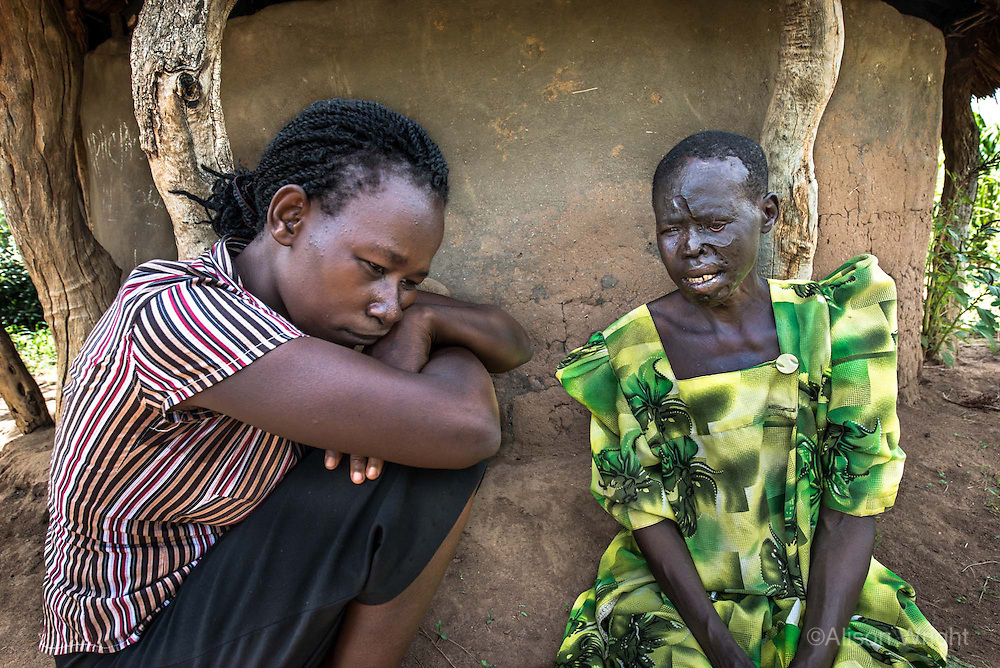 Africa, N. Uganda, Kitgum District. Dorothy confides to a counselor the challenges of losing her family and living alone since the war. Jean, a PCAF (Peter C. Alderman Foundation) social worker, listens to her patient as Dorothy, 52, describes the challenges & loneliness of losing most of her family during the war. Dorothy suffers from epilepsy and was badly burned when having a seizure and falling into her kitchen fire, burning her face and fusing her fingers. She is now afraid to be on her own and complains that her children rarely visit. She relies on her neighbor to help get her food and obtain her medication from the clinic. She is severely depressed and suicidal.