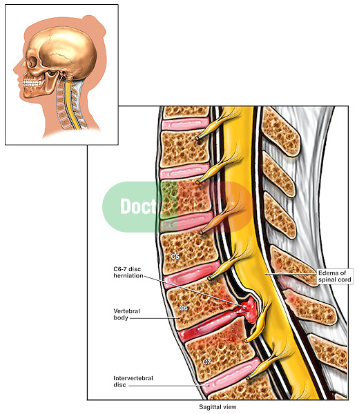 Spinal Cord Compression from C6-7 Disc Herniation